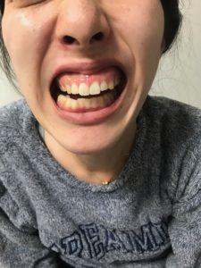 顎 外れる あくび